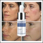 15 ml Ácido Hialurônico Caracol Essência Soro facial Hidratante Reparação Branqueamento de Cuidados